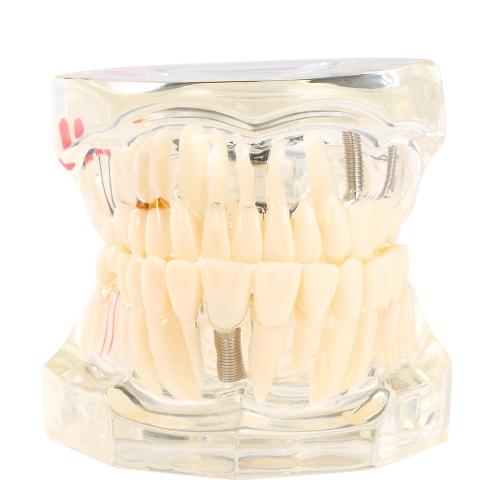 Transparent Dental Implantation Disease Teeth Model Teaching Teeth Tool Dental Adult Typodont Removable Teeth Model