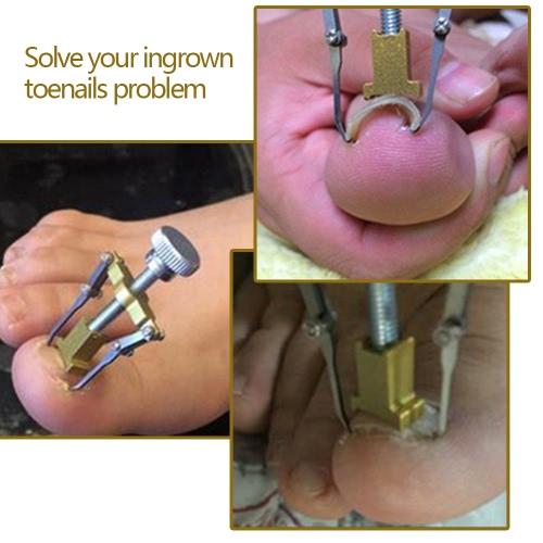 Купить инструменты для вросшего ногтя